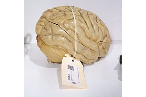 Antique Model of the Human Brain